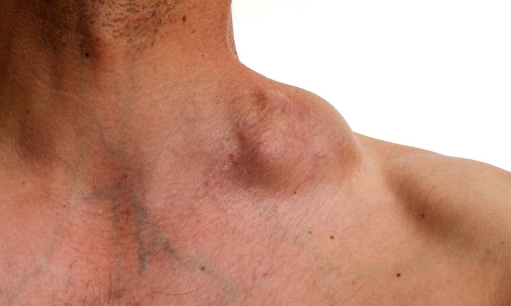 Actualités sur la prise en charge des lymphomes cutanés ...