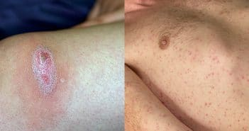 Maladies infectieuses vectorielles en France métropolitaine: intérêt pour le dermatologue
