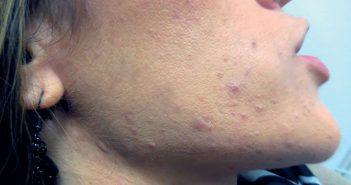 Dysséborrhée et acné: un nouvel enjeu pour le dermatologue