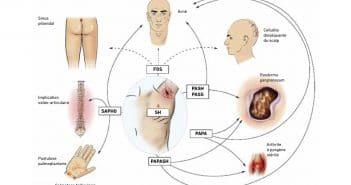 Prise en charge thérapeutique de la maladie de Verneuil: entre traitements médicaux, chirurgie et thérapies du futur