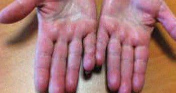 Les autres acrosyndromes vasculaires